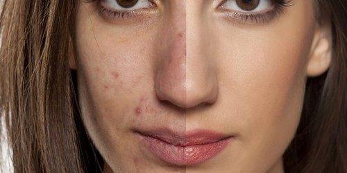 acne low carb